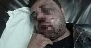 صور.. مأساة عامل أصيب فى حادثة دراجة نارية ويحتاج 7800 جنيه لإنقاذ حياته