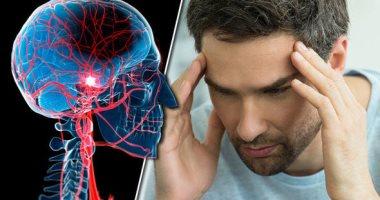 اعرف أسباب تكرار الإصابة بالسكتة الدماغية.. منها ارتفاع ضغط الدم