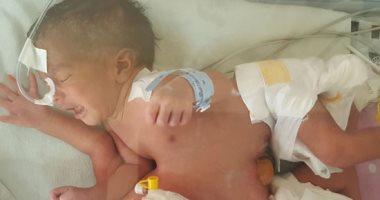 صور.. فصل توأم ملتصق حديث الولادة بمستشفى الشاطبى بالإسكندرية