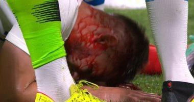 فيديو.. إصابة دموية لجيرو فى تعادل فرنسا وأمريكا 1 - 1 قبل المونديال