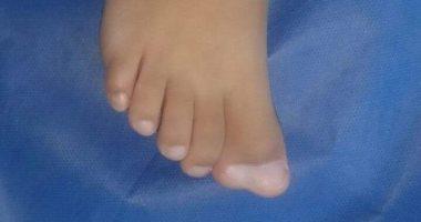 إصلاح عيب خلقي بالقدم اليمني وإزالة إصبع زائد لطفل 4 سنوات بجنوب سيناء