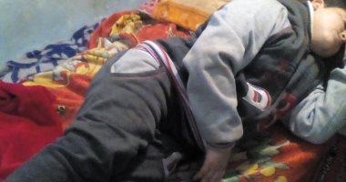 صور.. مأساة سيف.. كسر بالمفصل أفقده القدرة على الحركة وأسرته تناشد علاجه