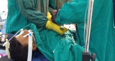 إجراء جراحة استكشاف بالبطن لطفل ﻷول مرة بمستشفى رأس سدر