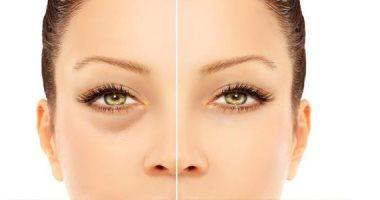 صحتك فى وصفة لعلاج انتفاخ العين بـالخيار والبطاطس