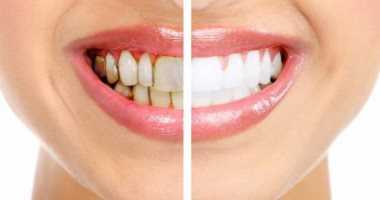 صحتك فى وصفة.. البيكربوناتو وزيت جوز الهند معجون أسنان للتخلص من الجير