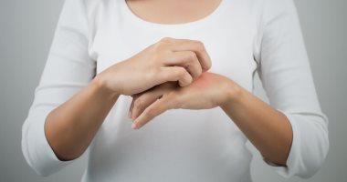 ابتعد عنها أشياء تزيد إنتاج الجسم للهيستامين المسبب للحساسية