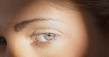 س وج يعني أيه ارتفاع ضغط العين؟ وما هى طريق العلاج؟