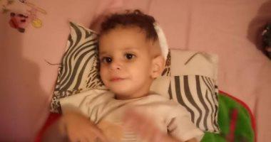 """صور ..الطفلة """"أمنية"""" بالشرقية تعانى من ورم بالمخ وتحتاج سرير بمستشفى57"""