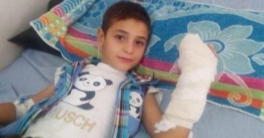 مستشفى عام بالزقازيق ينجح في إعادة توصيل إصبع مبتور لطفل بعد رفض 7مستشفيات