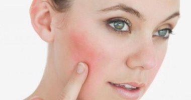 اسباب حساسية الوجه بعض انواع الطعام والتغيرات الموسمية