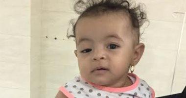 نجاح جراحة تجميل عيون لطفلة عمرها 6 شهور بمستشفى رأس سدر بجنوب سيناء