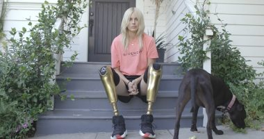 كيف عادت العارضة لورين واسر إلى أسبوع الموضة فى نيويورك بعد بتر ساقيها؟