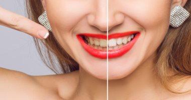 اسباب اصفرار الأسنان منها بعض الأدوية