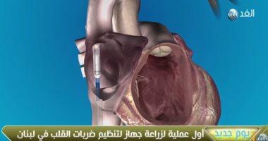 شاهد أول عملية زراعة جهاز تنظيم ضربات القلب دون جراحة أو تخدير بلبنان