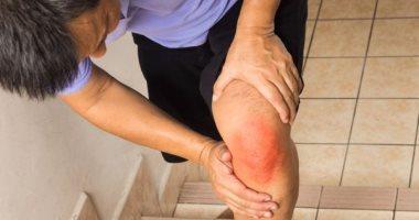 اسباب طقطقة الركبة عديدة منها التهاب المفاصل