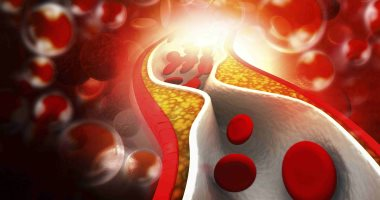 Signs of a blood clot and ways to prevent it