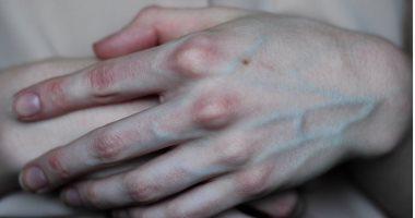 fd672fc87116c 5 أسباب لبروز عروق اليد.. أبرزها الضغط النفسى - اليوم السابع