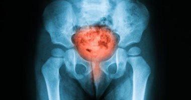 أعراض التهاب المثانة أهمها ألم الحوض وحرقان عند التبول