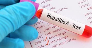 التهاب الكبدى الوبائى أ - صورة أرشيفية