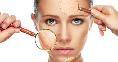بالعسل والصبار.. وصفات لعلاج آثار الجروح على الجلد