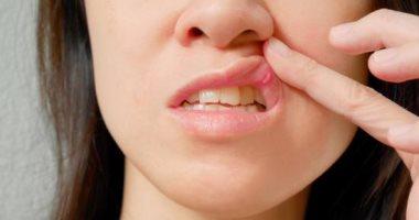 أسباب جفاف الجلد حول الفم.. منها الحساسية والالتهاب