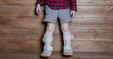 اعراض لين العظام عند الاطفال منها قصر القامة وتوقف النمو