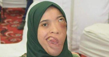 قارئة تطالب بعلاجها على نفقة الدولة بجراحة عاجلة من ورم ليفى بالوجه والفكين