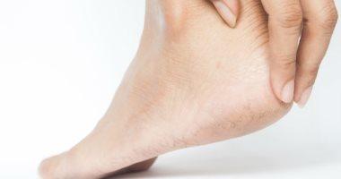 علامات خفية على قدمك قد تكشف عن أمراض مثل السرطان والصدفية