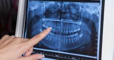 ما الغرض من استخدام الاشعة السينية على أسنانك