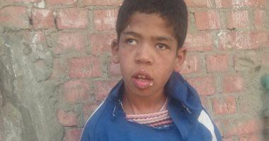 صور.. والد طفل معاق ببنى سويف: ابنى يعانى من مياه على المخ وأناشد بمعالجته