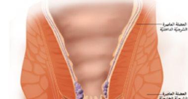 اعرف جسمك.. العضلة العاصرة الشرجية تتحكم فى اخراج الفضلات من الجسم