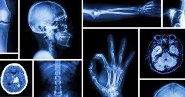 فى ذكراه الـ174.. حكاية مكتشف أشعة إكس تبرع بجائزة نوبل ورفض براءة اختراع