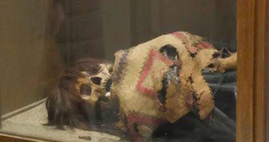 صدق أو لا تصدق.. عمليات البتر موجودة منذ آلاف السنين فى بيرو