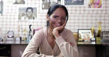 """الهندية ديبيكا بادوكون تنشر صورة لوجهها مشوها بـ""""الأسيد"""" ..إيه الحكاية؟"""