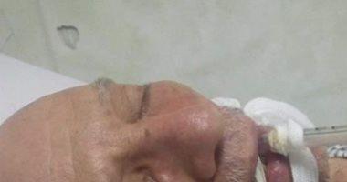 مناشدة لوزارة الصحة لتوفير رعاية مركزة لمريض بغيبوبة بمستشفى الصدر بإمبابة