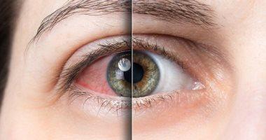 مرضك حسب سنك.. أمراض قد تصيب عينيك بسبب التقدم فى العمر