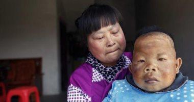 العمر 30 سنة والسن 3.. قصة رجل صينى لم يخرج من مرحلة الطفولة
