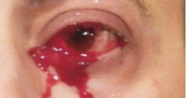 بيبكى بدل الدموع دم..حالة نادرة بسبب نمو الأوعية الدموية فى الجفون