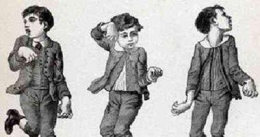 """كل ما تريد معرفته عن """" سيدنهام"""" متلازمة الرقص اللاإرادى وعلاجه؟"""