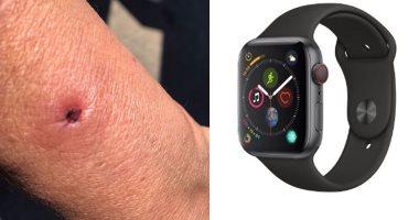امرأة تصاب بحرق فى ذراعها بسبب بطارية ساعة أبل Apple 3 Watch -