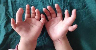 صور.. ولادة فتاة بـ14 إصبعا.. وإجراء عملية لتصحيح العيب الخلقى