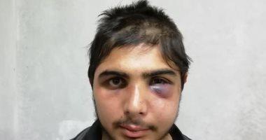 صور.. تعرض صحفى سورى للتعذيب هو وأسرته على يد ضابط تركى