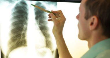 تعرف على اعراض التهاب الرئة وأبرز الأسباب