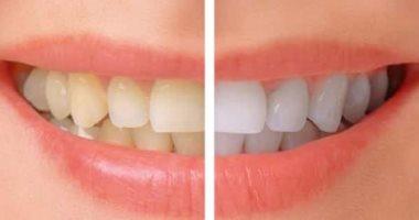 للتخلص من مشكلة اصفرار الأسنان.. إليك الحل