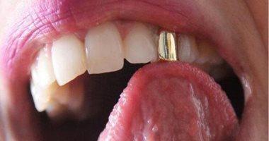عشان ضحكتك تبقى مميزة.. ألوان مختلفة من إكسسوارات الأسنان