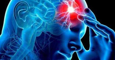 كل ما تريد معرفته عن السكتة الدماغية.. الأعراض وطرق العلاج 20190722105407547