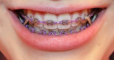 تقويم الأسنان اليوم السابع