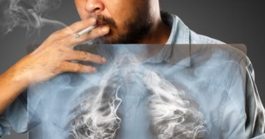 التلوث وفقدان الوزن وضيق التنفس وأسباب أخرى تصيب غير المدخنين بسرطان الرئة