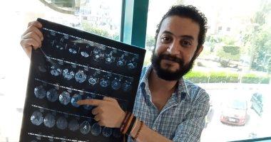 """""""مستشفى أرمنت"""":استقرار حالة طبيب حاول الإنتحار بعد إصابته بجلطة بالمخ"""