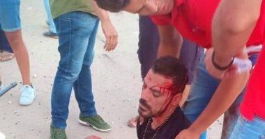 شاهد.. عمرو زكى بعد تعرضه لحادث مروع على طريق الساحل الشمالى